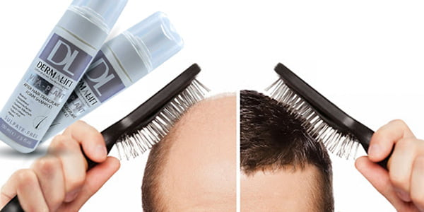 dermalift shampoo - شامپو مناسب موهای کاشته شده درمالیفت ۱۵۰ میلی لیتر
