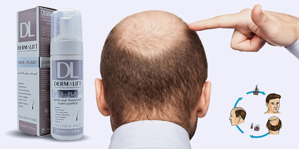 dermalift - شامپو مناسب موهای کاشته شده درمالیفت ۱۵۰ میلی لیتر